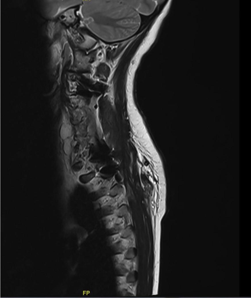 Destruction of cervical vertebrae