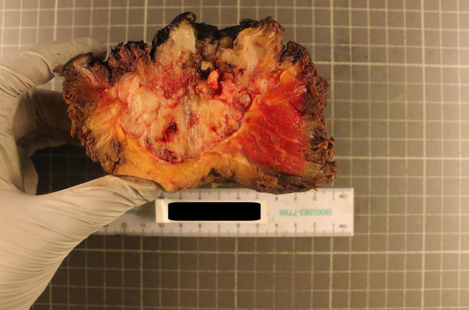 Chordoma has fleshy cut surface