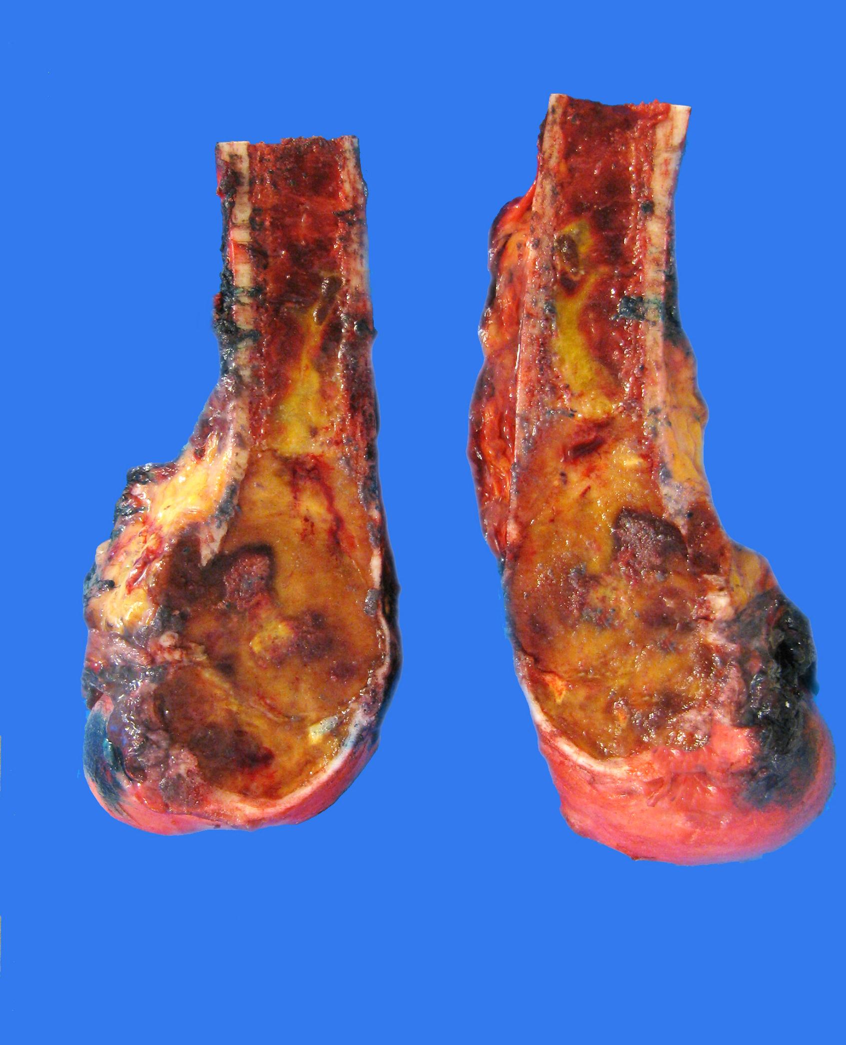 Left distal femur lesion
