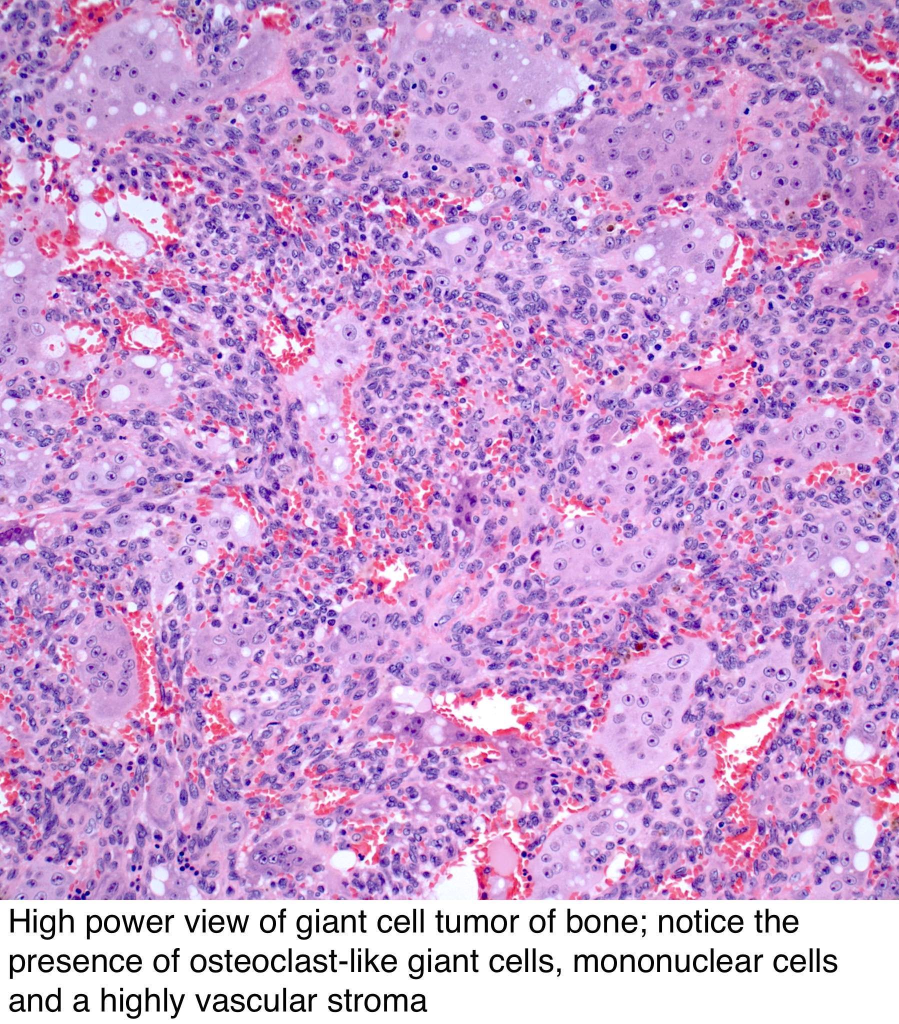 Pathology Outlines - Giant cell tumor of bone
