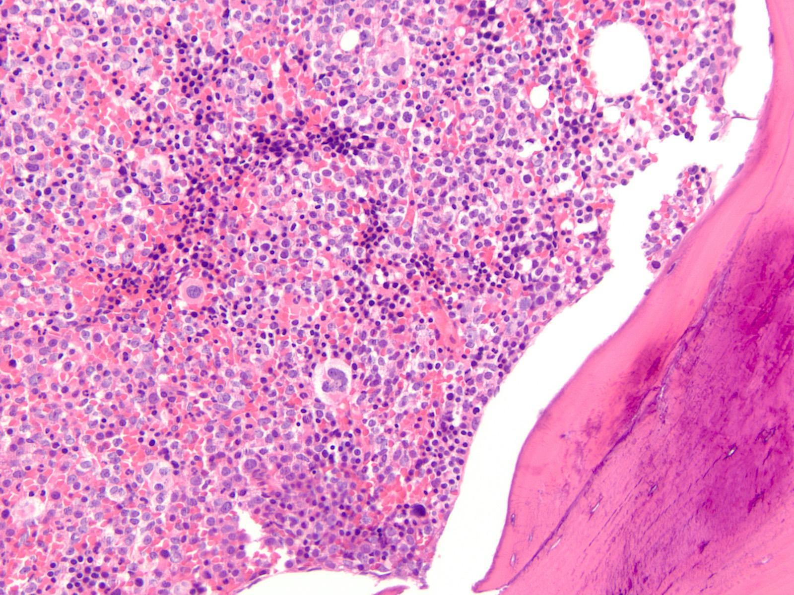 Bone marrow core biopsy