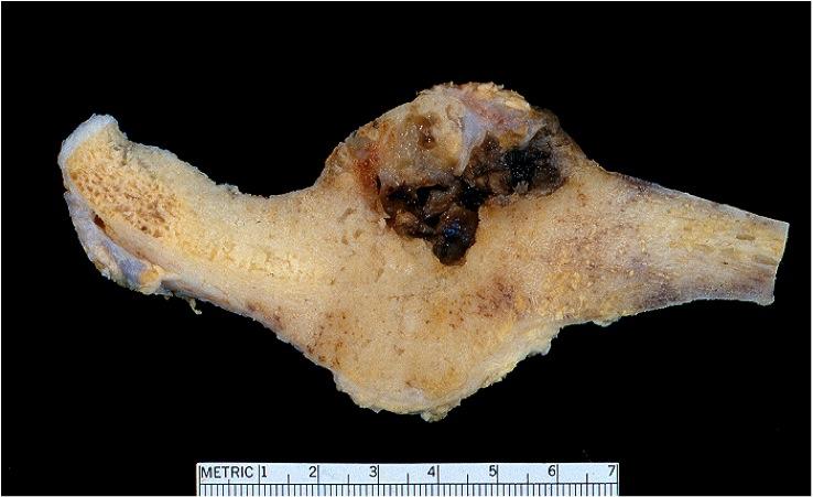 Osteoblastoma of clavicle