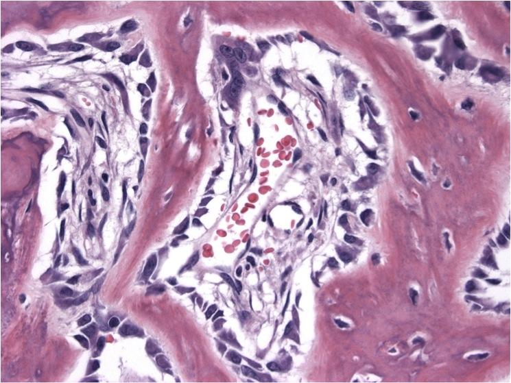 Osteoblastoma high power
