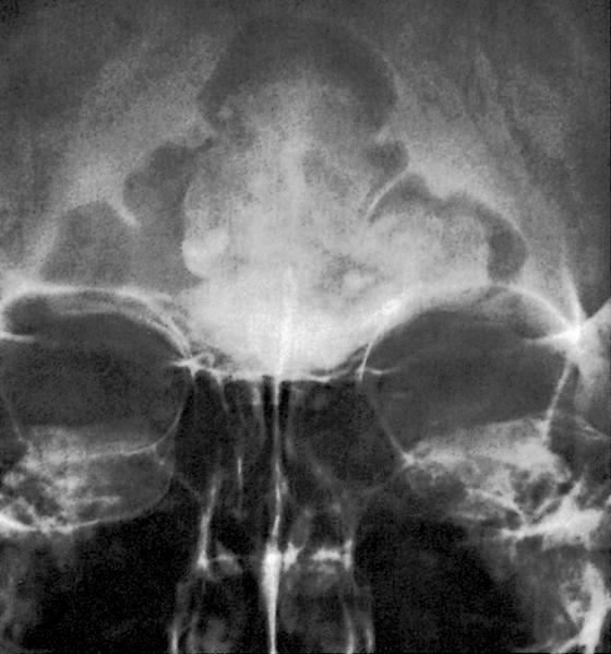 Dense lobular mass in frontal sinus