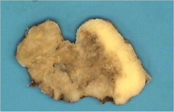 Osteoblastoma-like osteoma