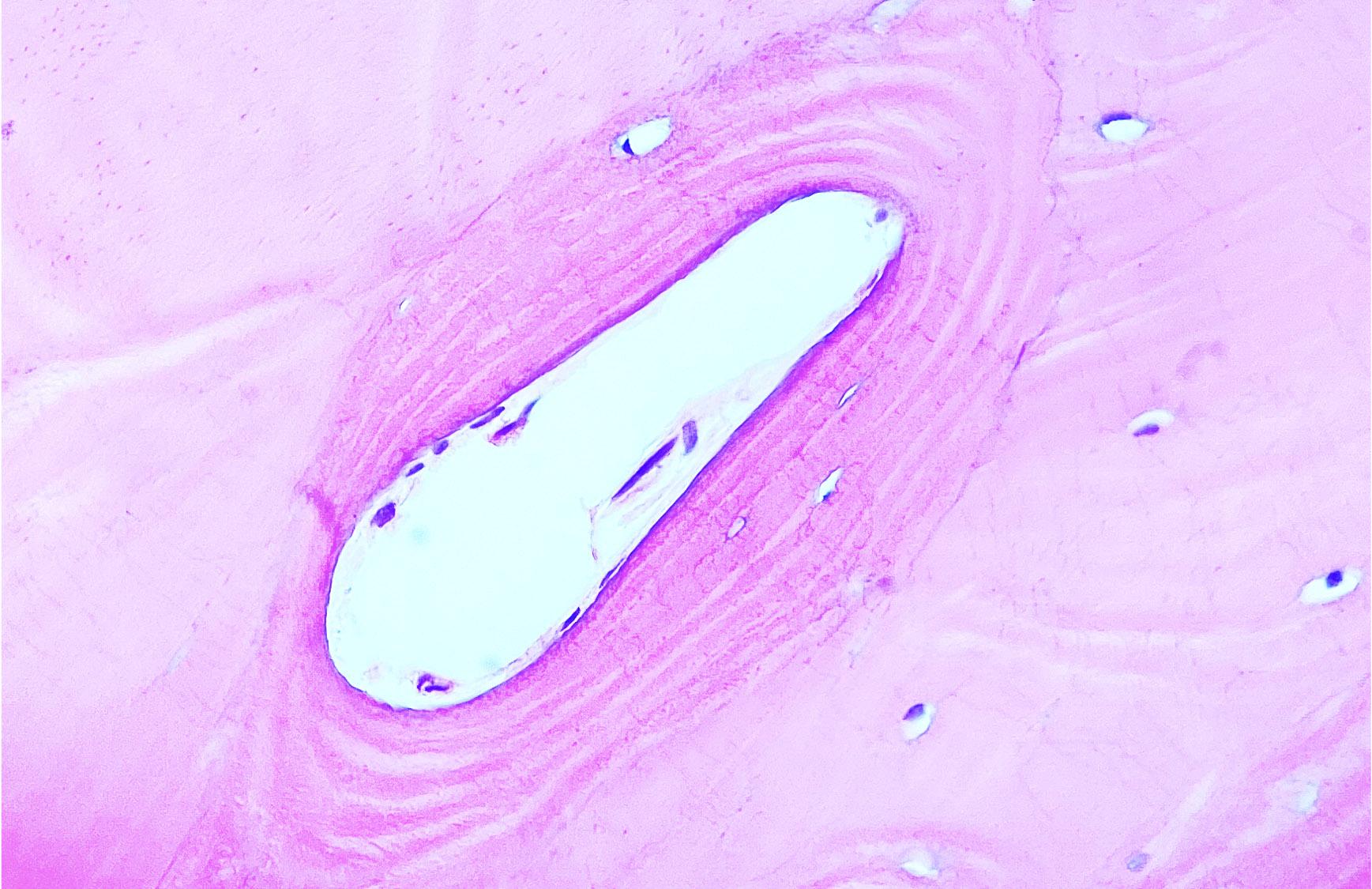 Osteoblasts and osteocytes