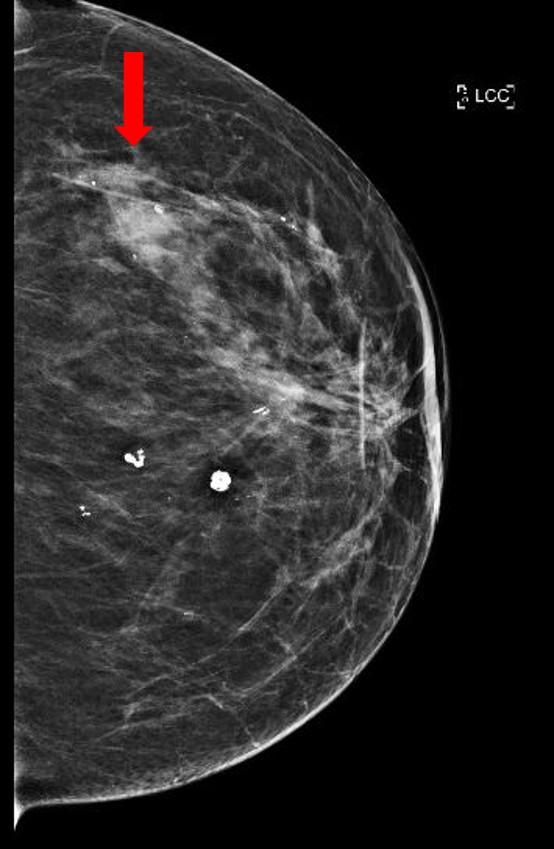 Mammogram, irregular mass