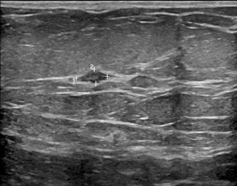 Ultrasound, hypoechoic mass