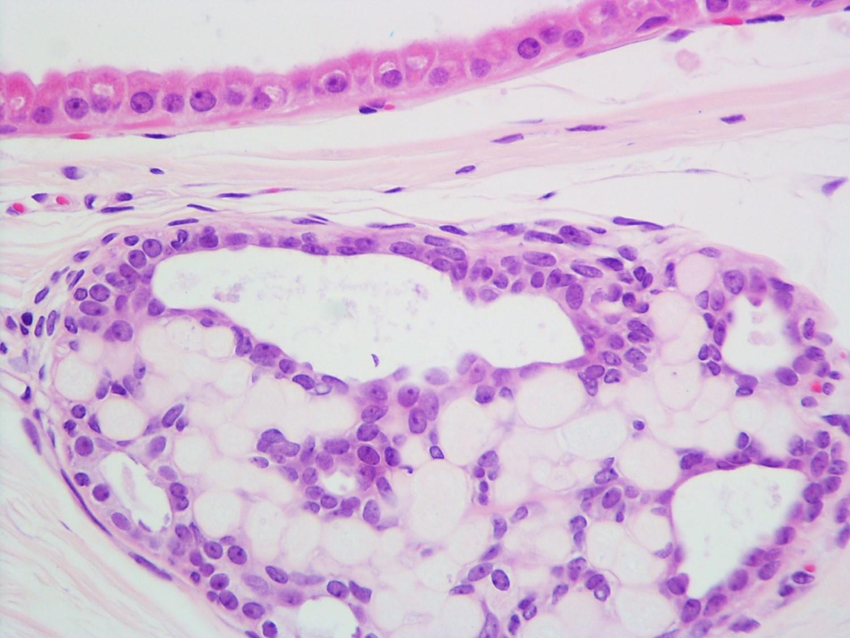 Adjacent apocrine metaplasia