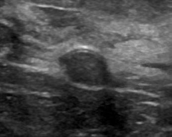 Hypoechoic mass, ultrasound