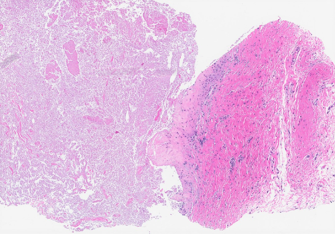 Ruptured cyst
