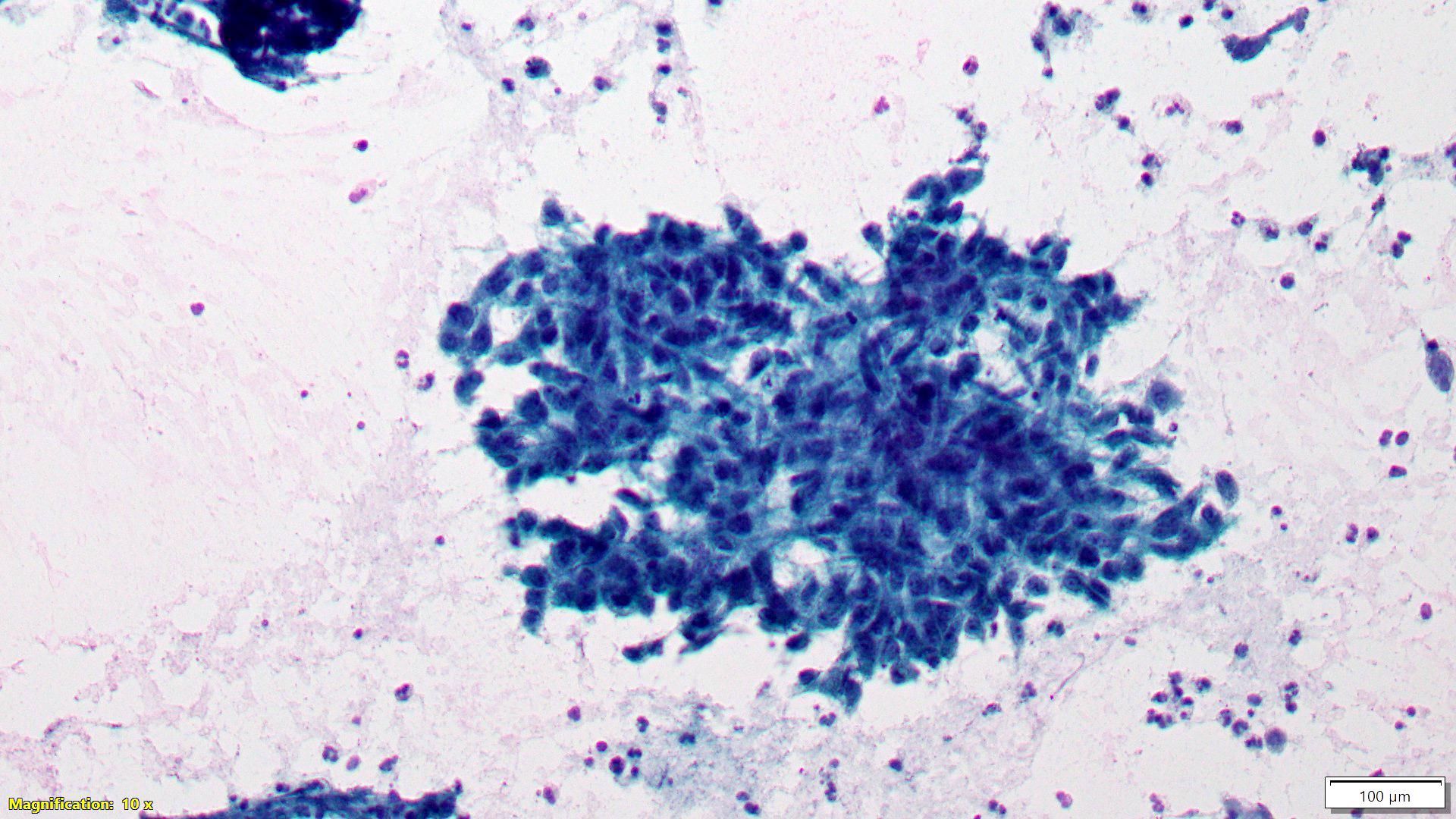 Granulomatous inflammation (C2)