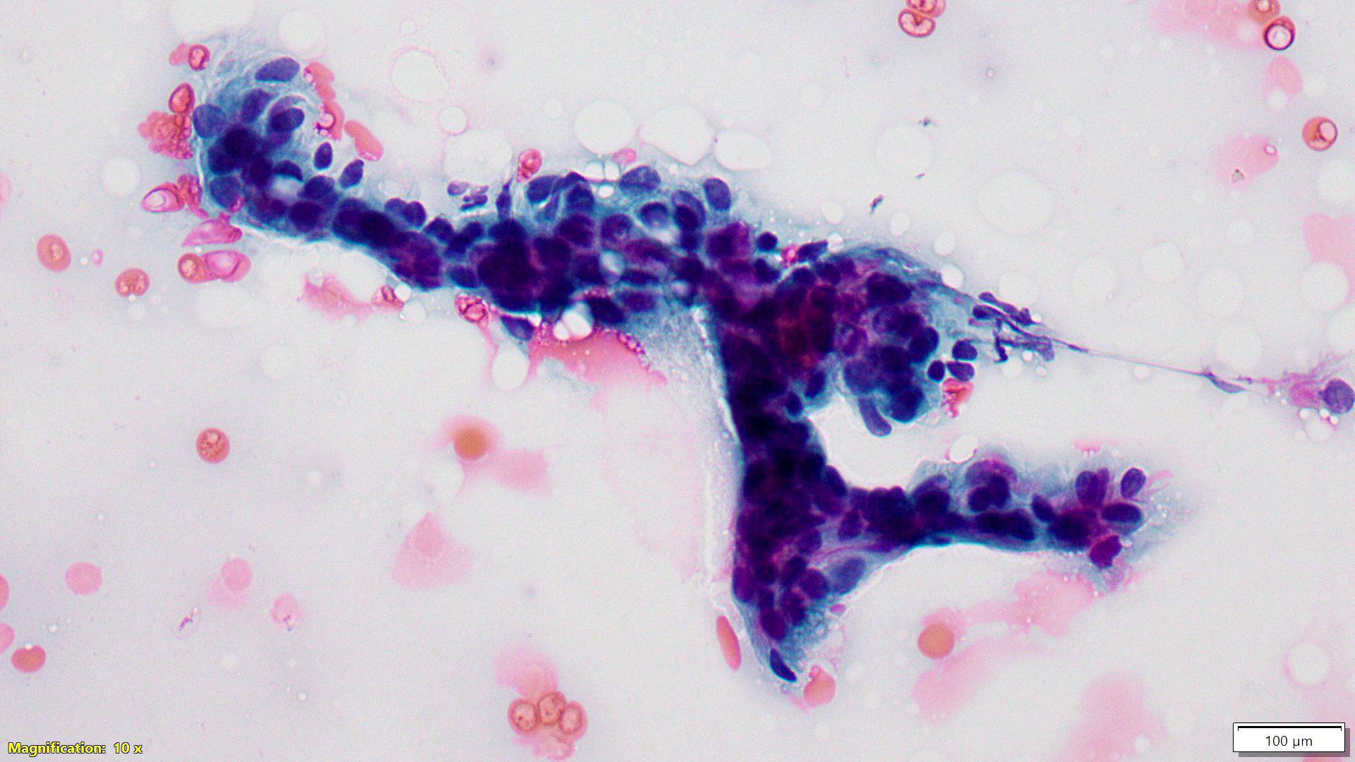 Fibroadenoma (C2)
