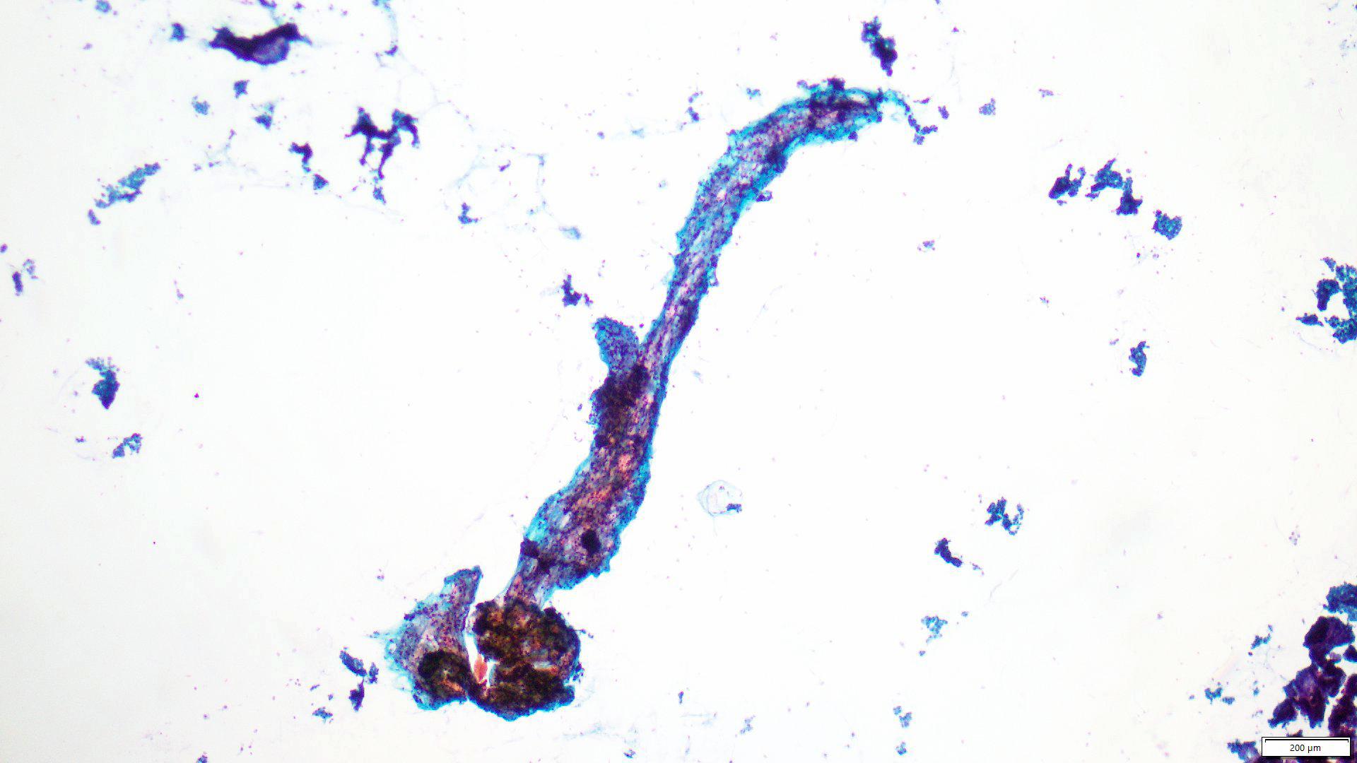 Phyllodes tumor (C2 / C3)