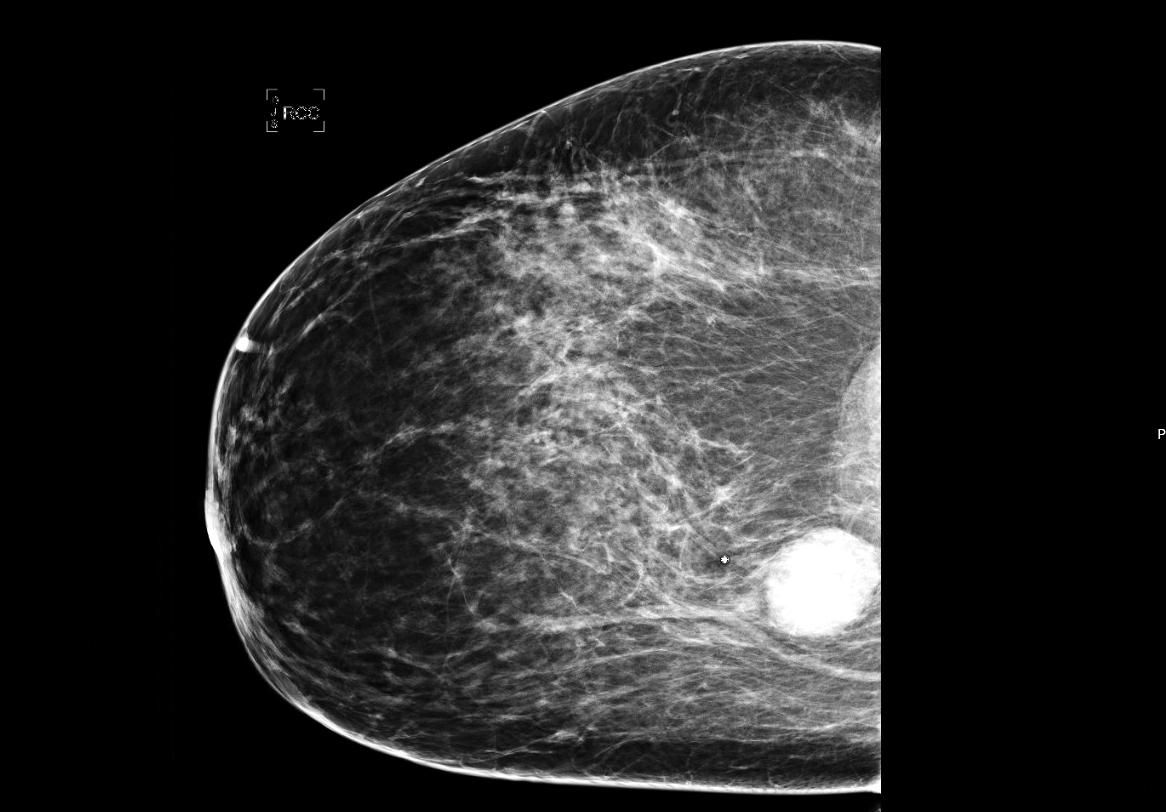 Mammogram of right breast