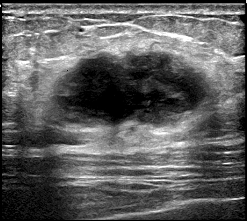 Ultrasound of right breast