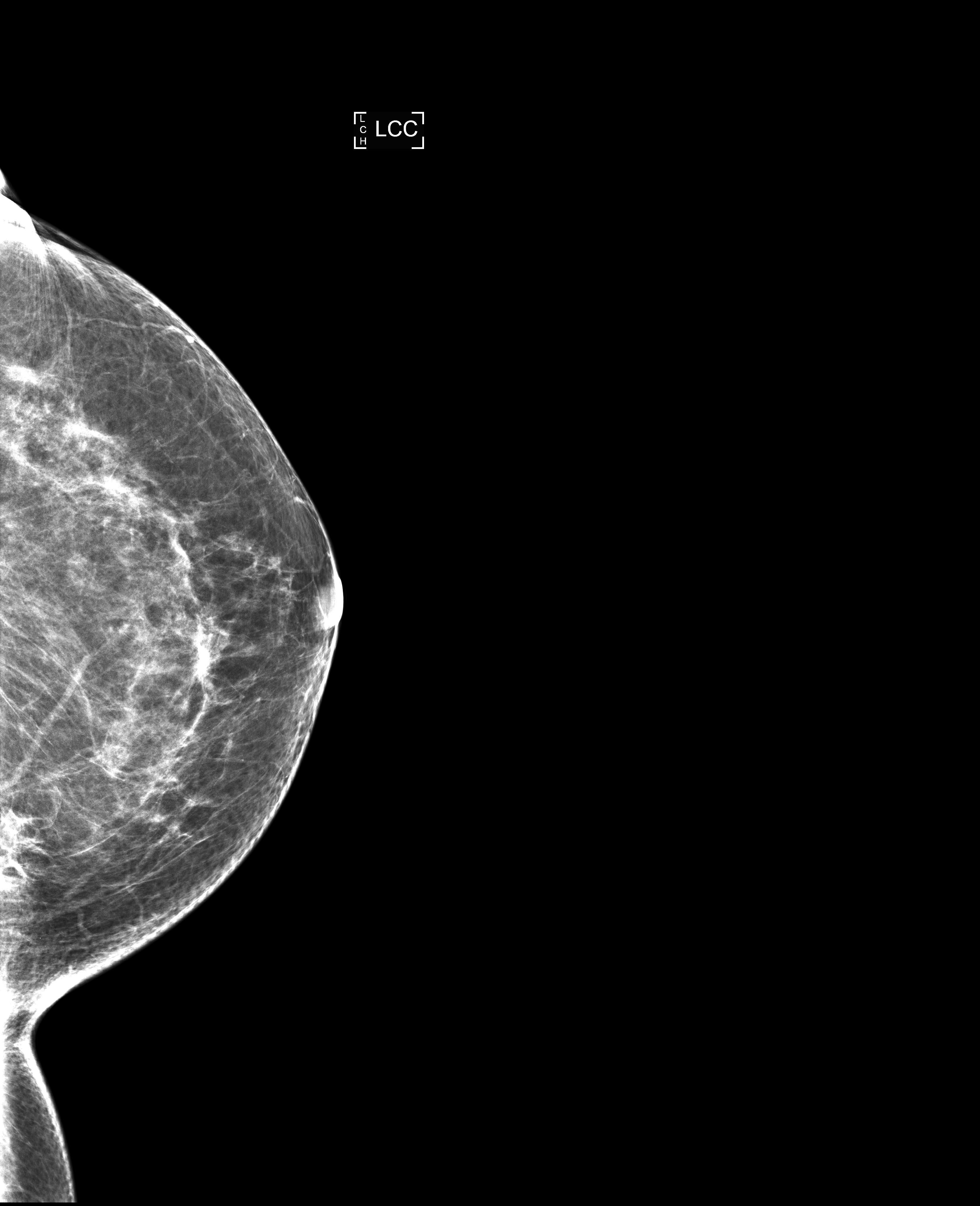 Mammogram of breast mass