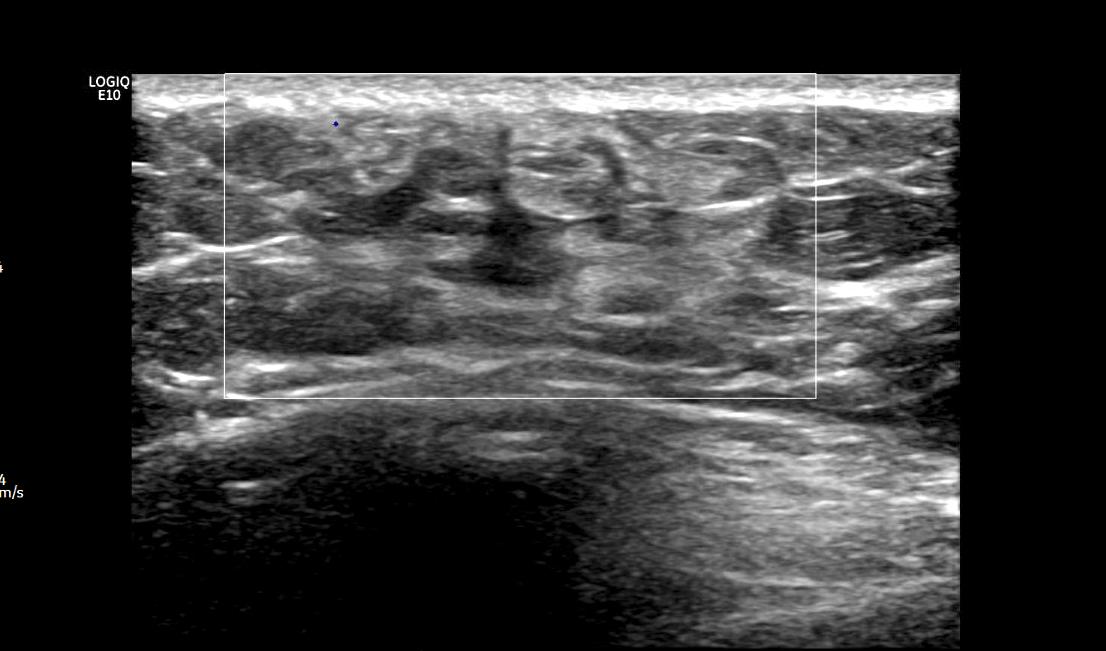 Ultrasound of left breast