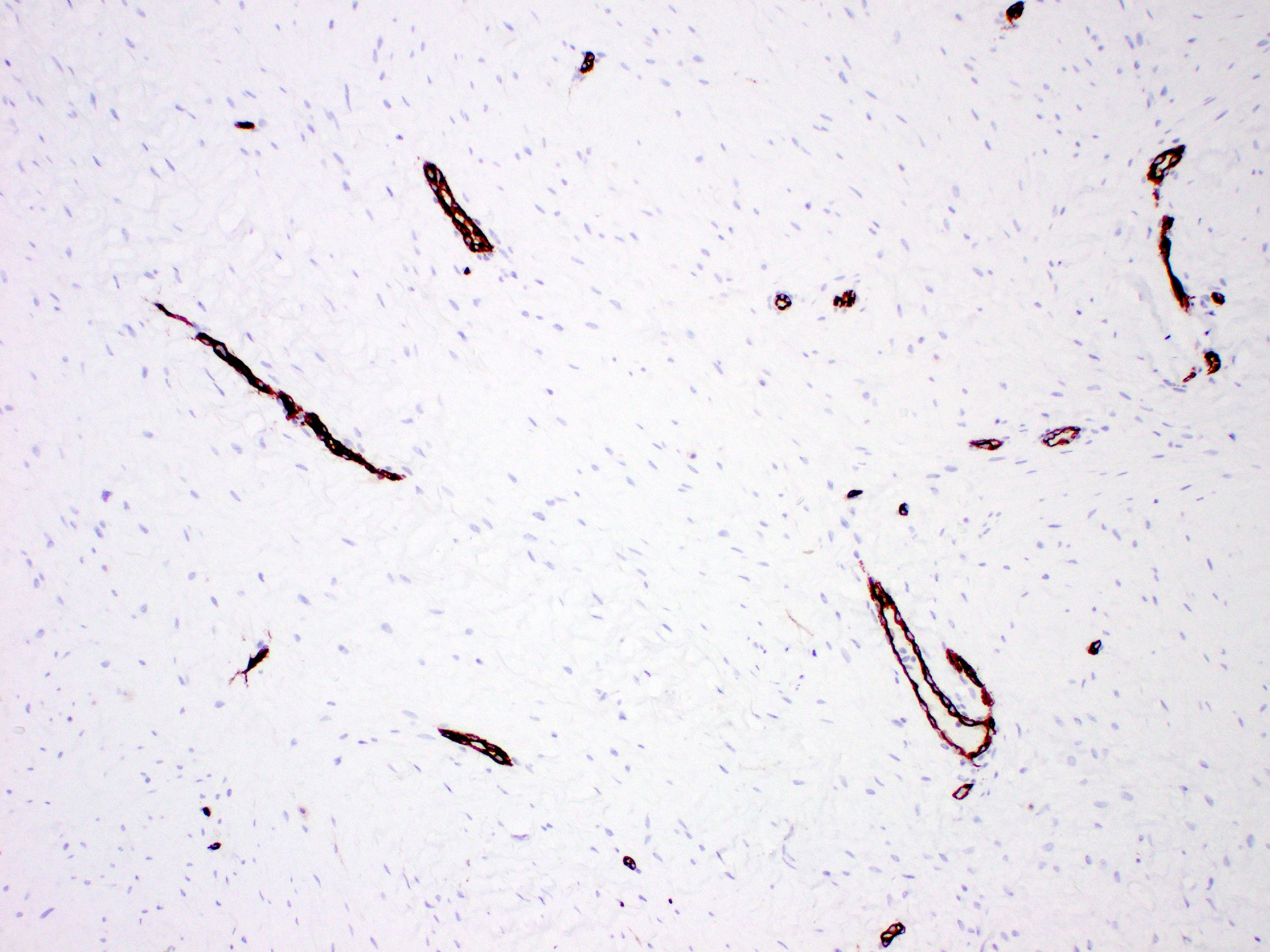 CD34 negative spindle cells