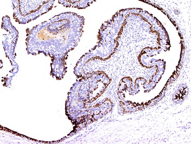 3 layer epithelium
