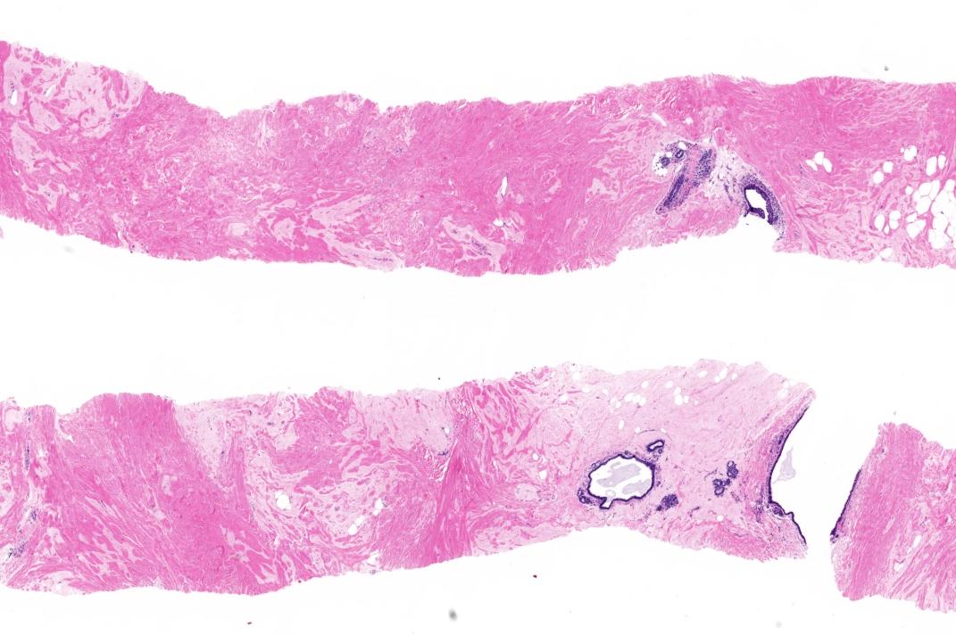 Dense fibrous stroma
