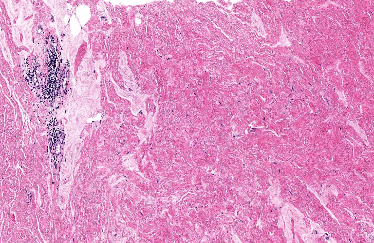 Perivascular lymphocytic inflammation