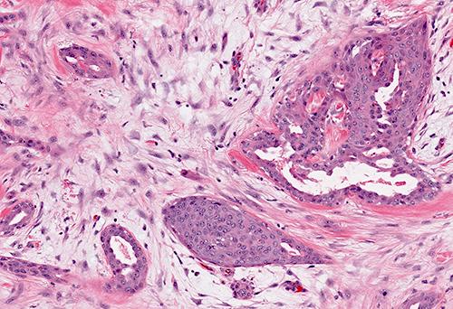 Bland cytology