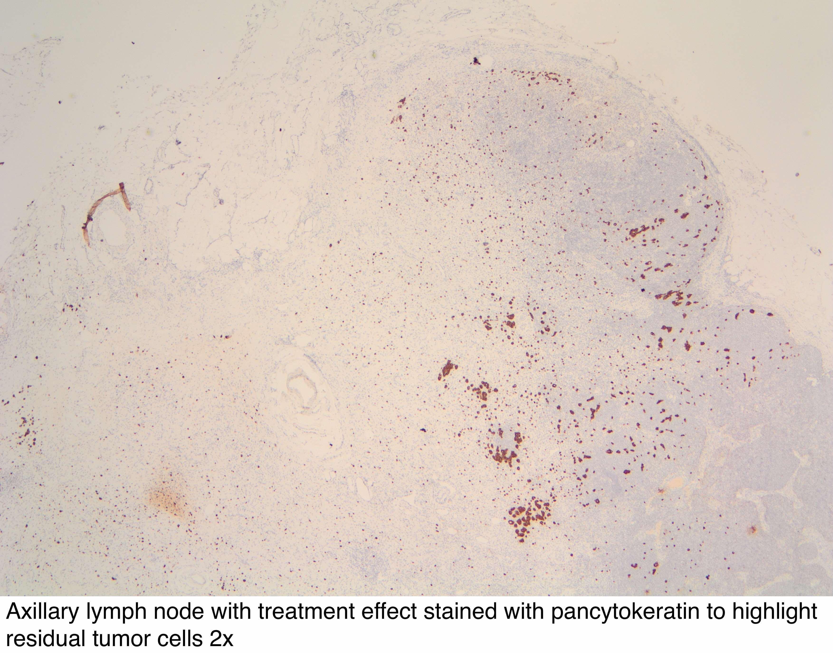 Pathology Outlines Axillary Lymph Node Examination