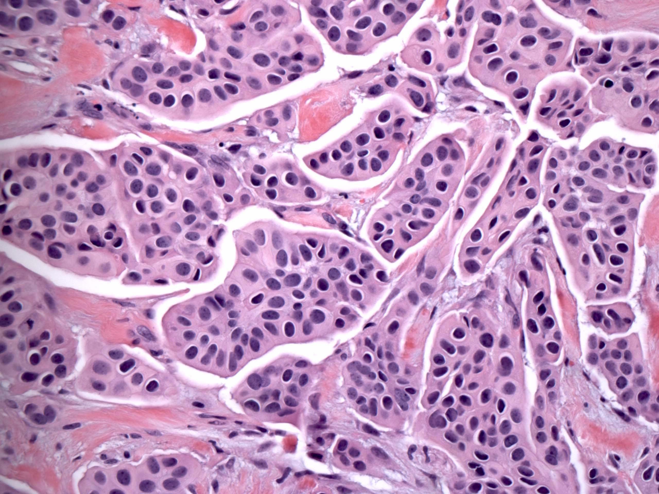 Micropapillary carcinoma