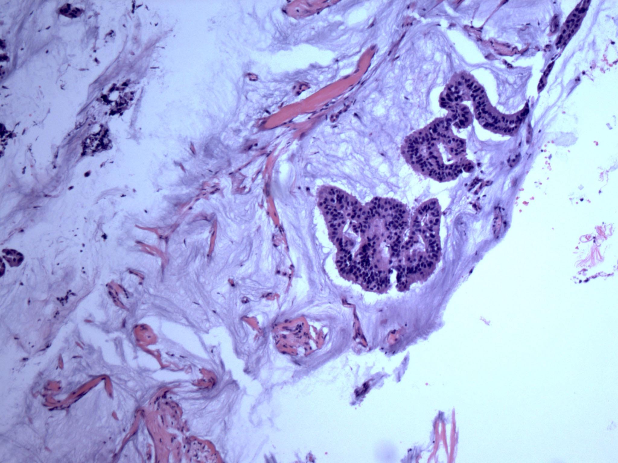 Mucinous micropapillary carcinoma