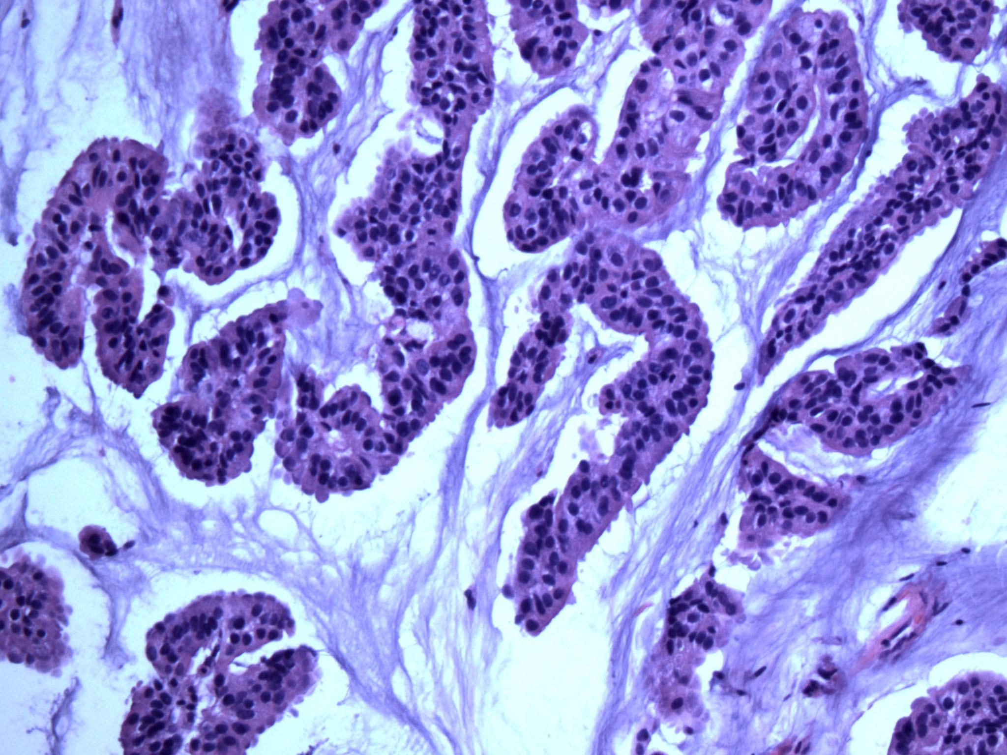 Mucinous hypercellular tumor
