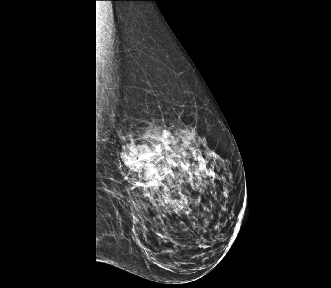 Mammogram of left breast