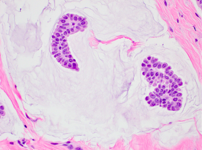 Bland epithelial cell clusters