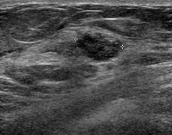 Invasive solid papillary carcinoma