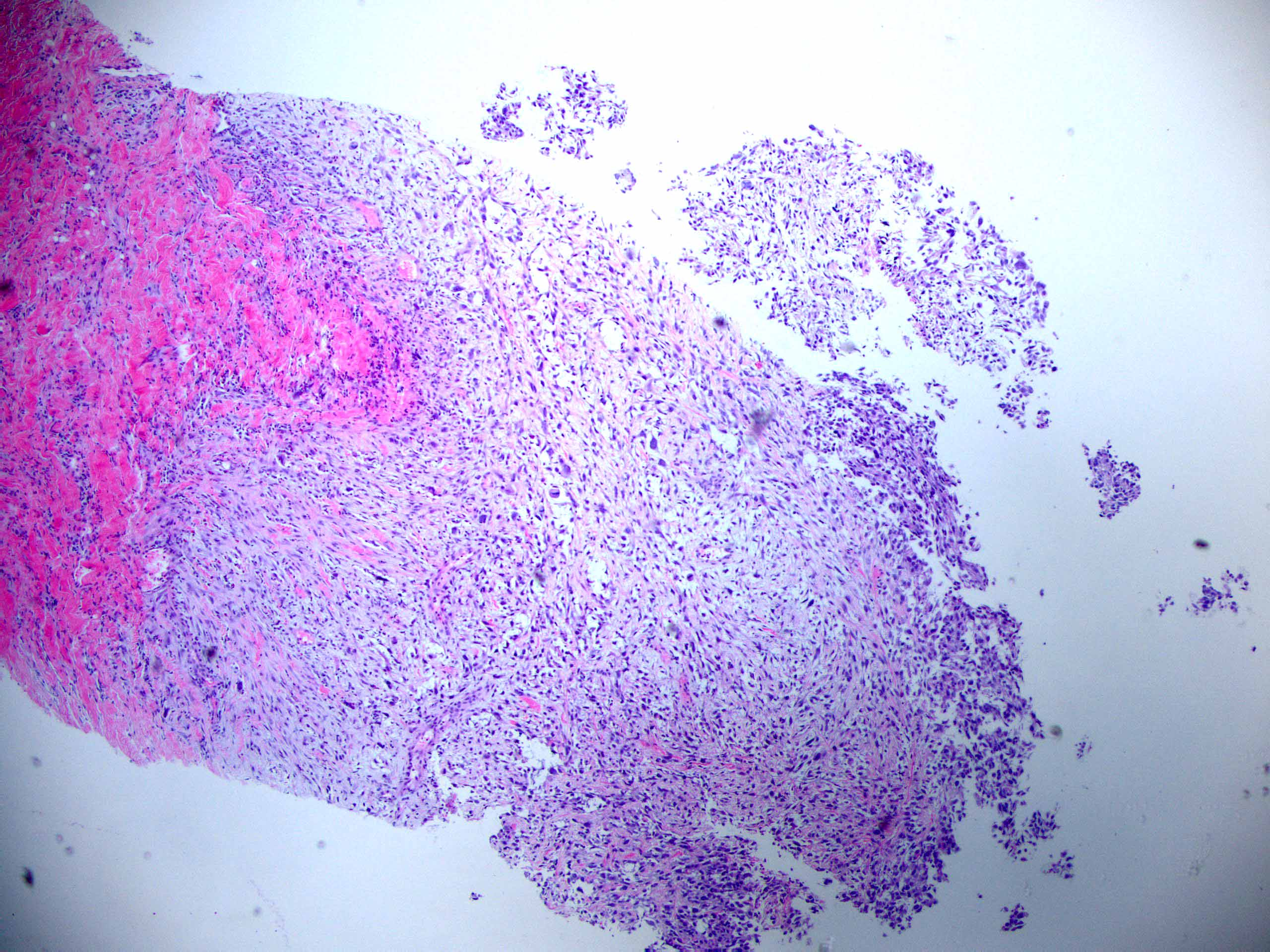 Spindle cell carcinoma