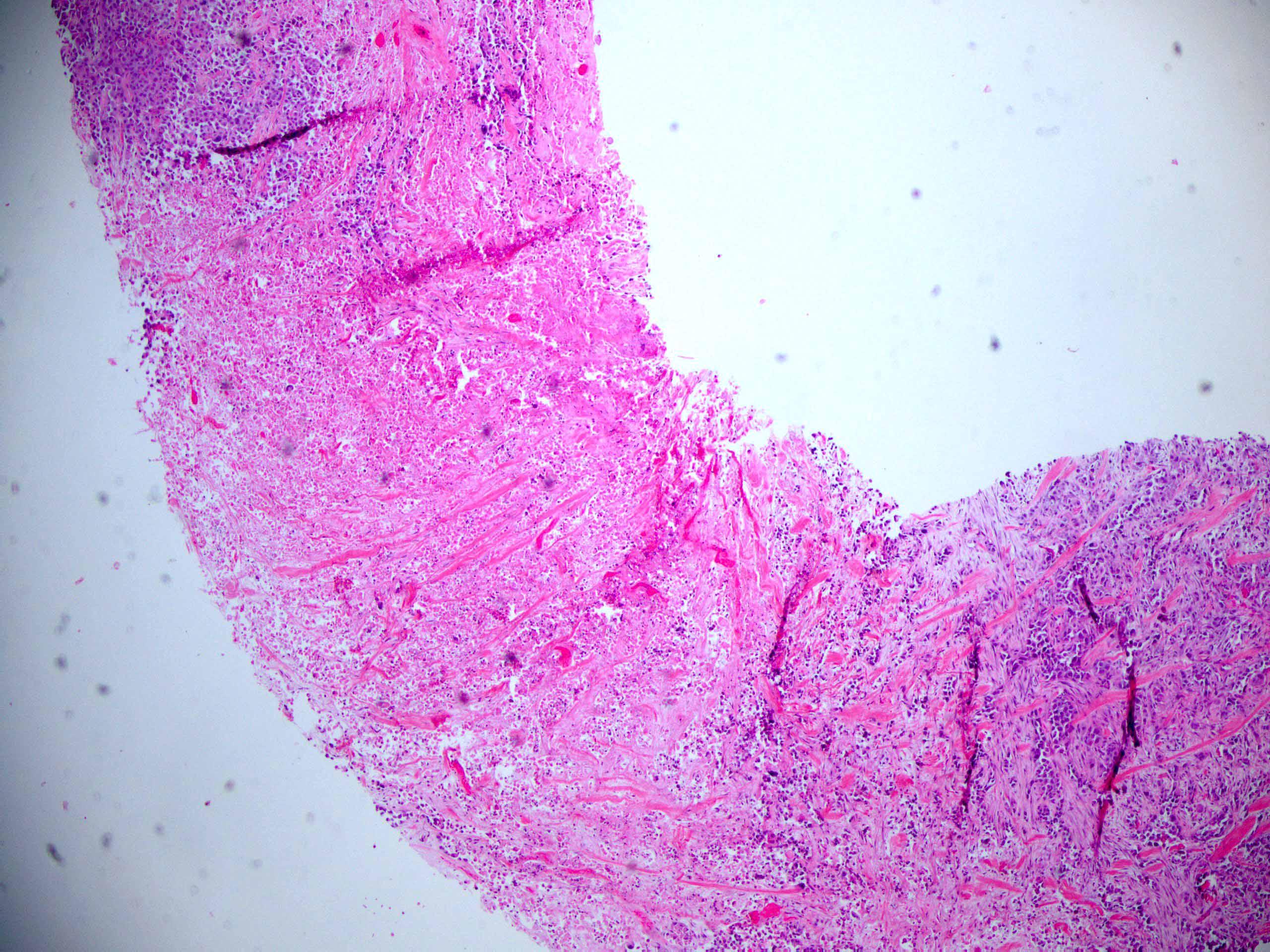 Metaplastic carcinoma with squamous differentiation