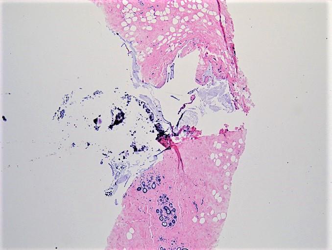 Mucin filled cyst