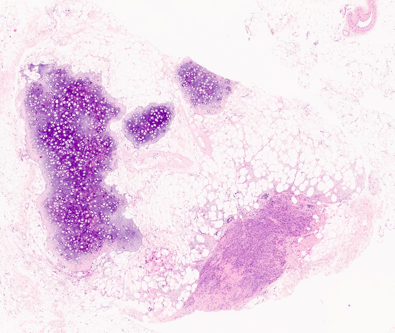 Chondroid metaplasia