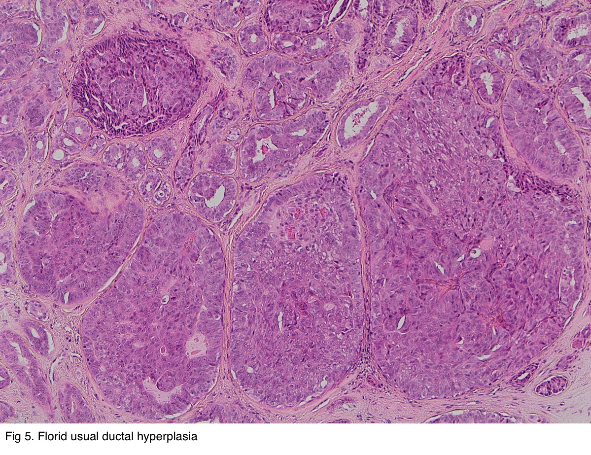 florid papillomatosis of the nipple pathology outlines