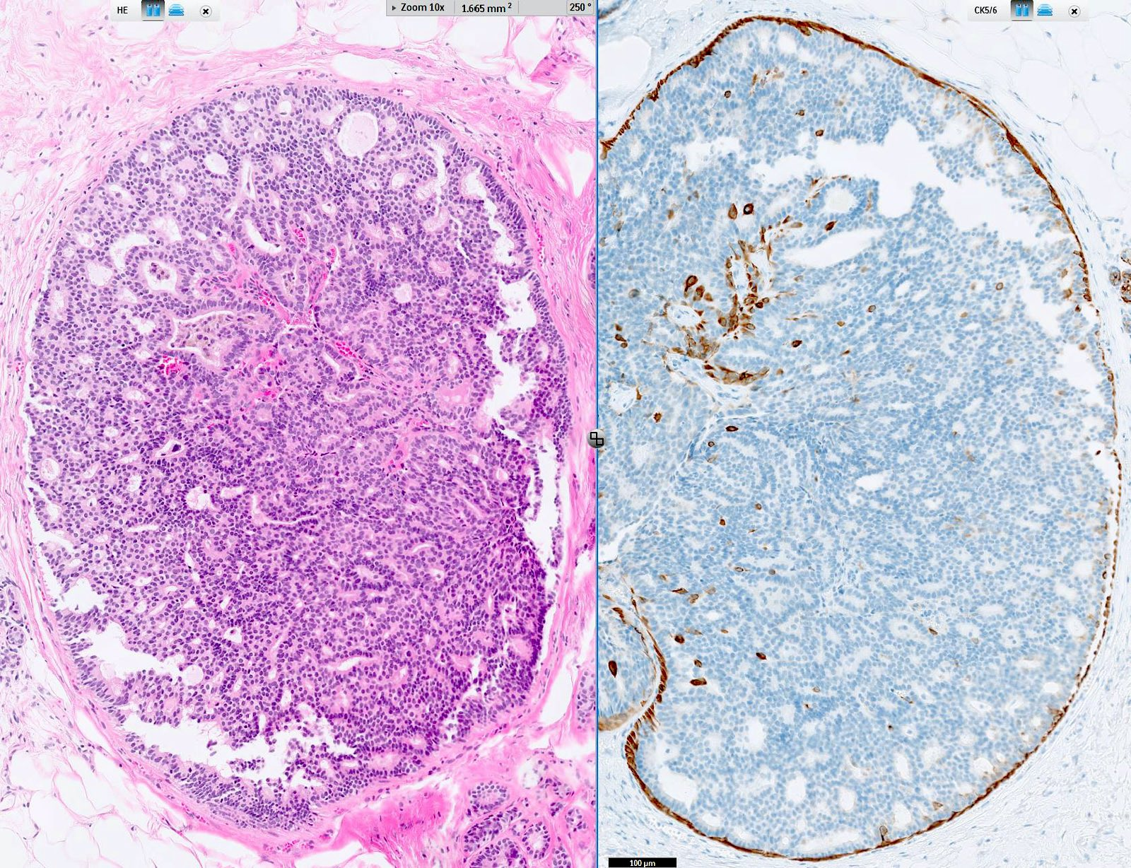Duct papilloma histology, Squamous Papilloma - Larynx - Histopathology hpv oropharynx cancer