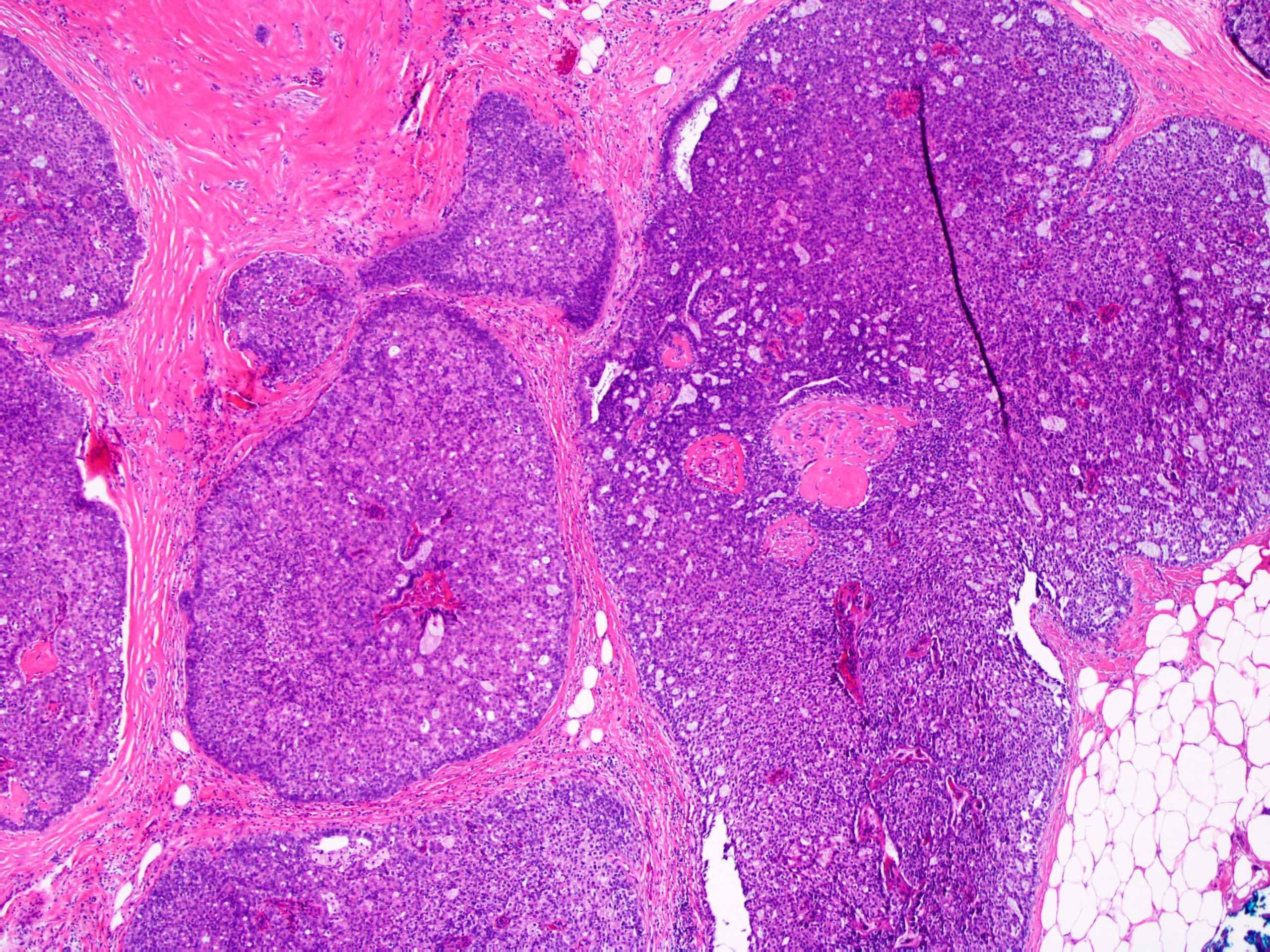 Intraductal papilloma pathology outlines Intraductal papilloma of breast pathology outlines