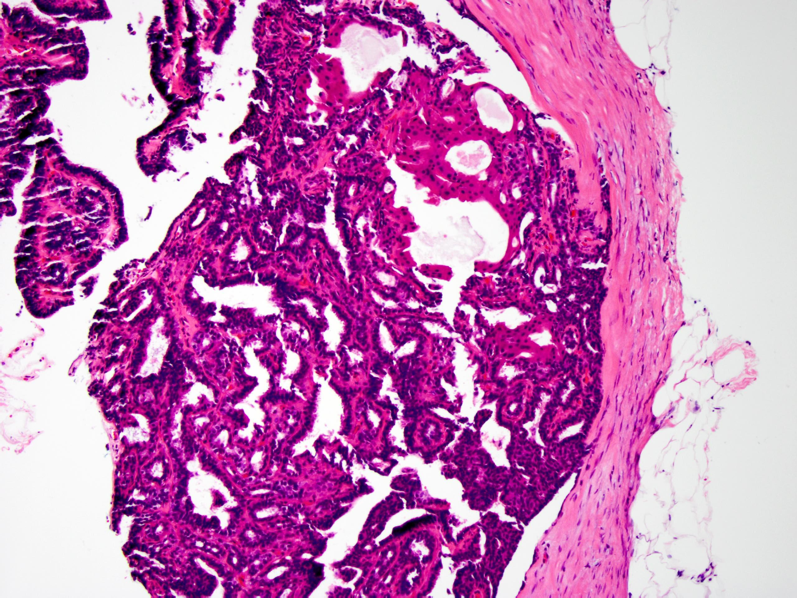 Involved by apocrine metaplasia