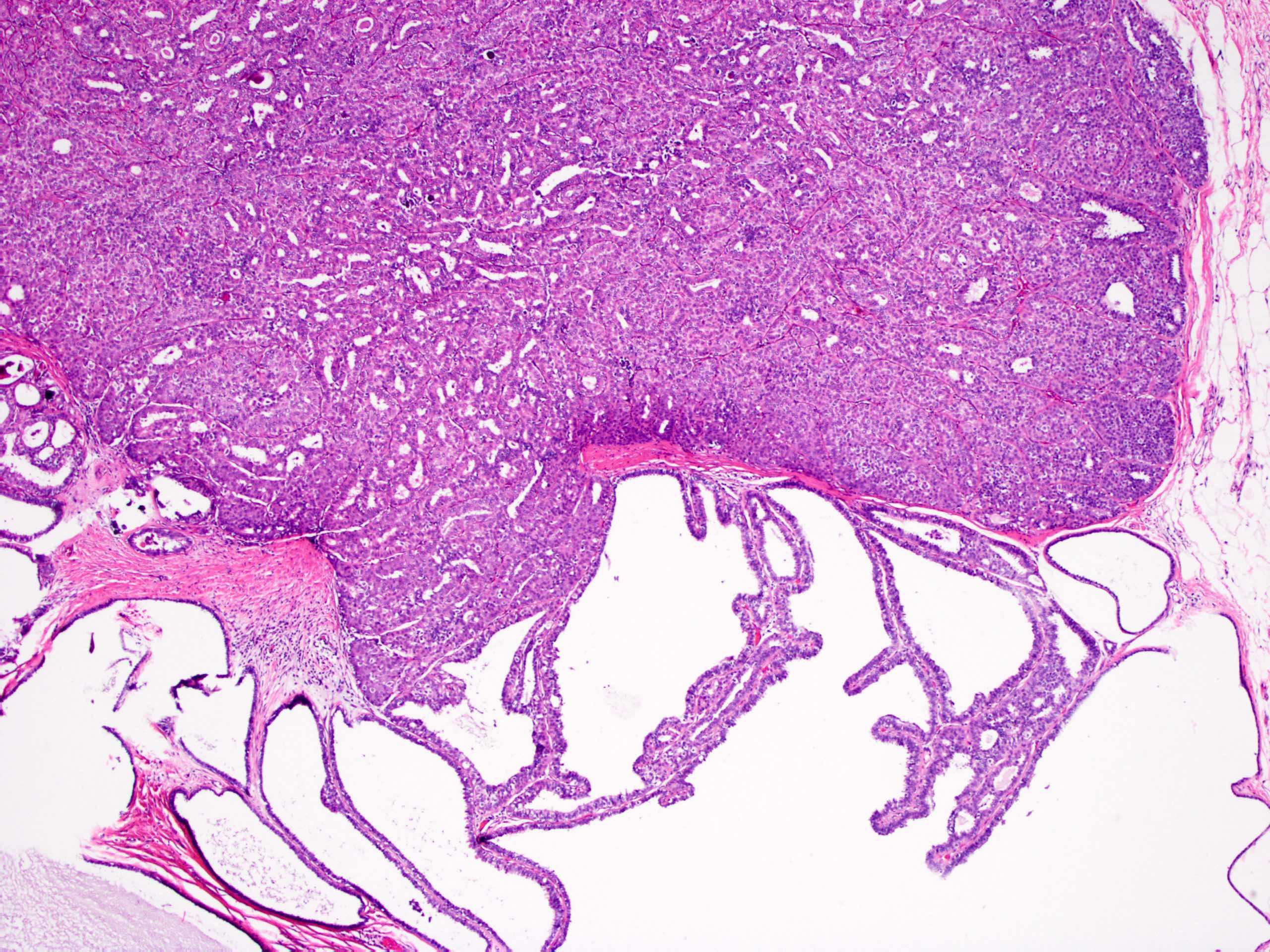 Papiloma intraductal de mama - Papiloma intraductal histologia - Papiloma ductal atipico