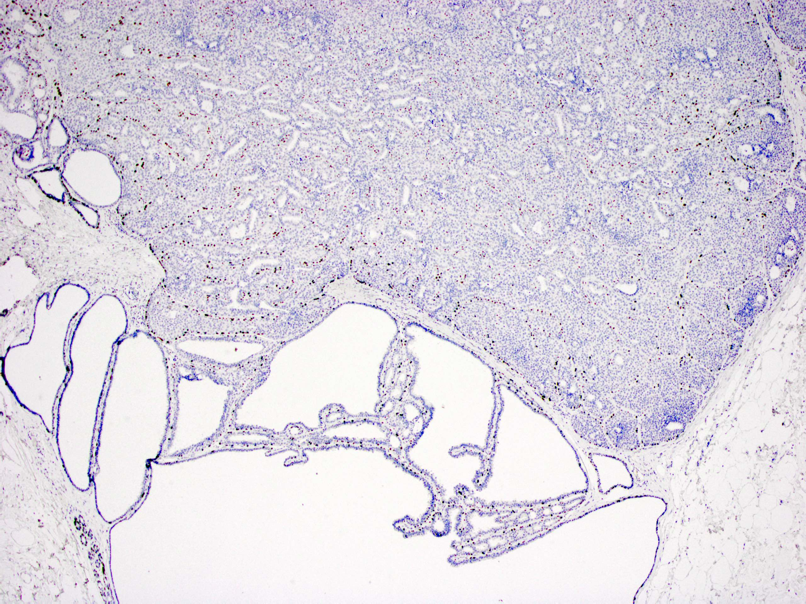 Involved by ductal carcinoma in situ