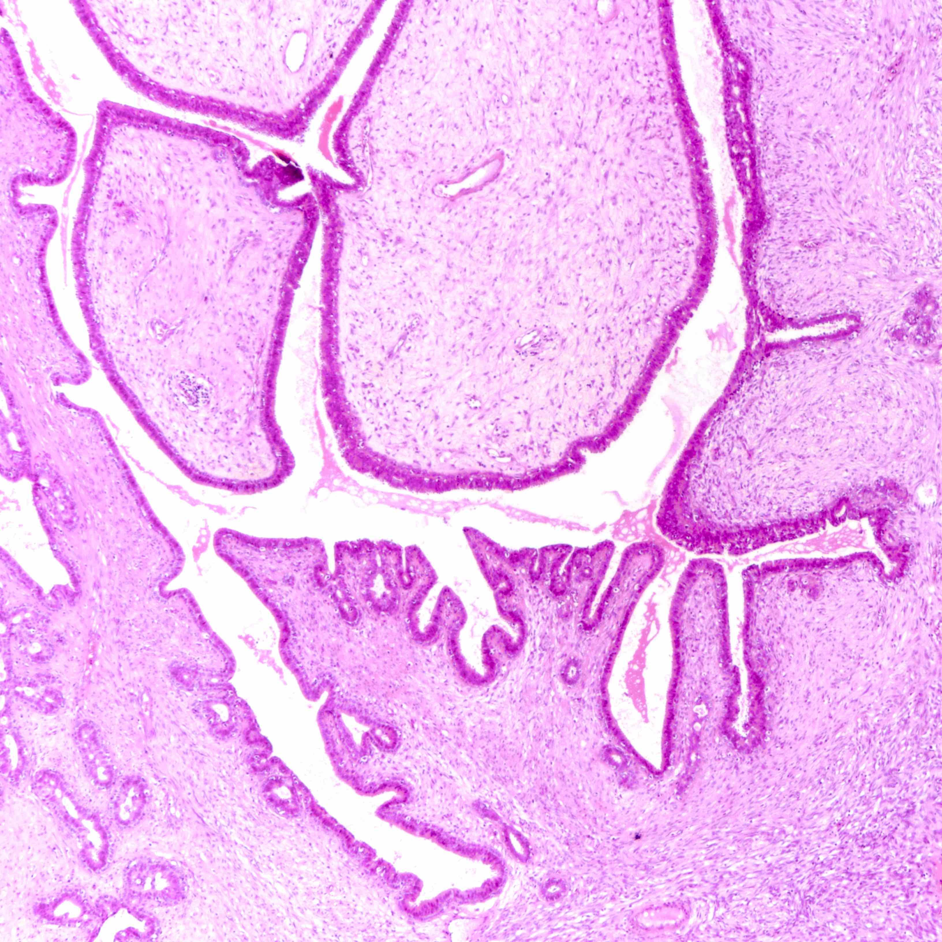 Leaf-like epithelial pattern
