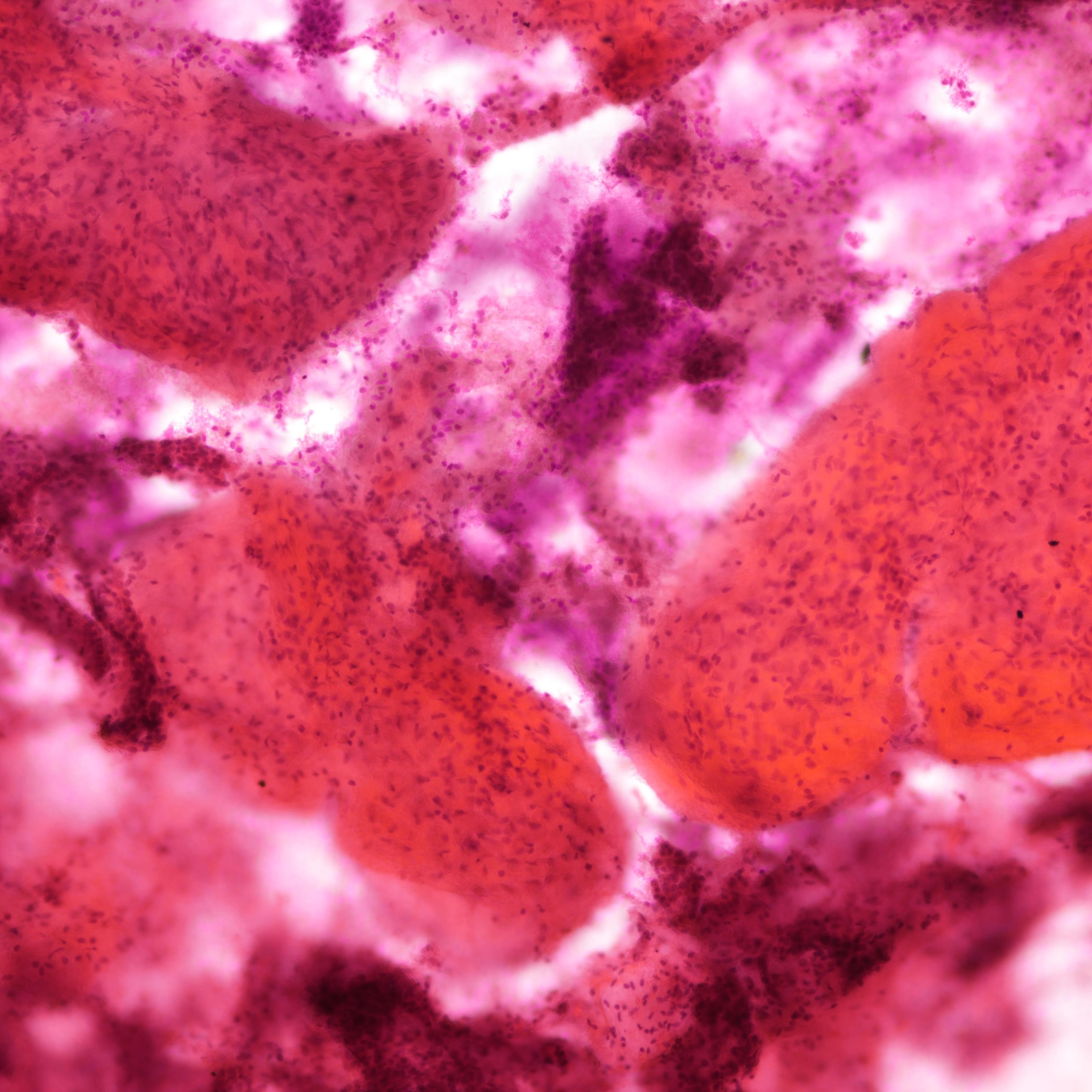 Fibromyxoid stromal clumps