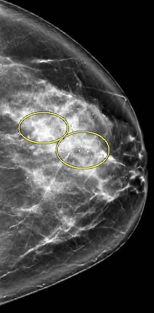 Calcifications, craniocaudal view