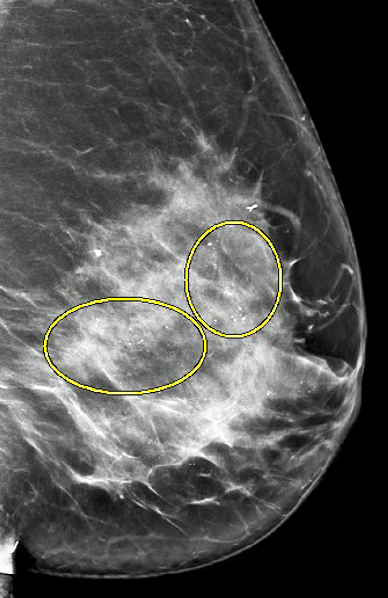 Calcifications, mediolateral oblique view