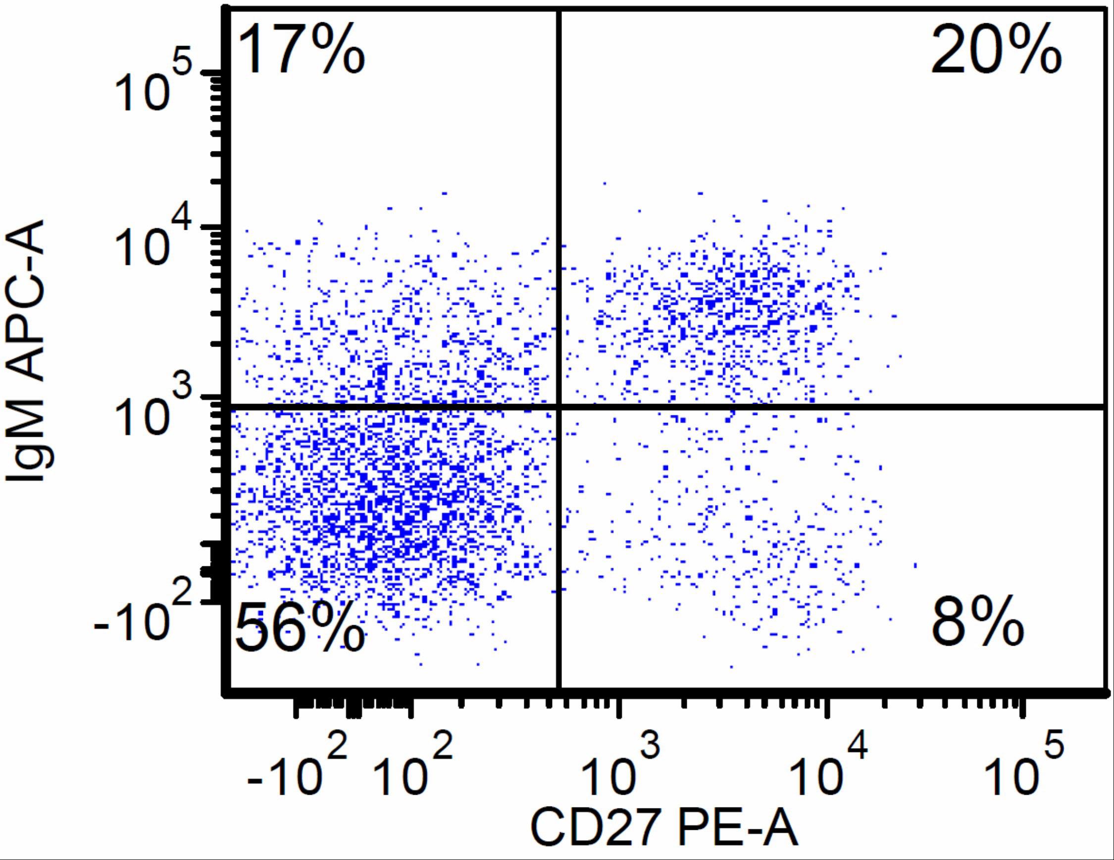 Flow cytometry of CVID patient