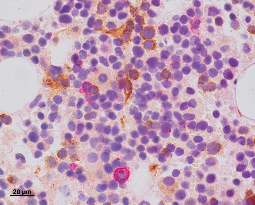 Bone marrow biopsy